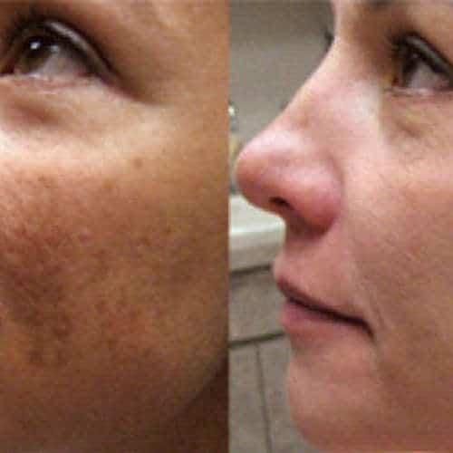 Scar Tissue Improvement